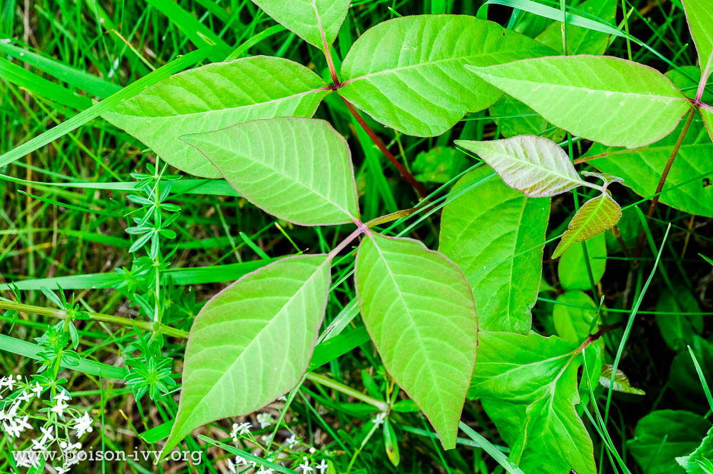 poison sumac rash pictures #10