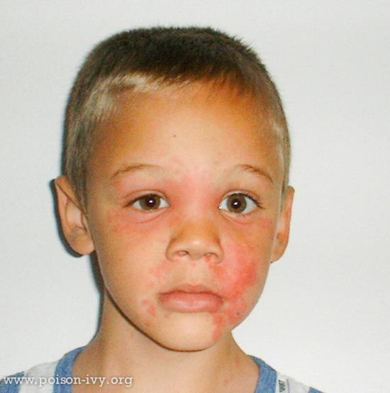 Poison Ivy or Oak Face Rash
