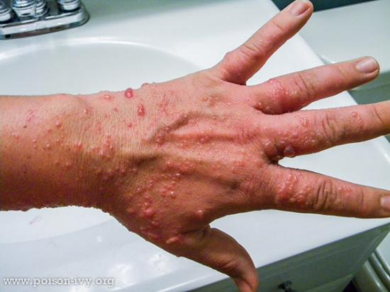 Bumpy Poison Ivy Rash on the Back of the Hand
