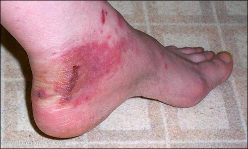 Ankle Gash with Red Poison Ivy Rash