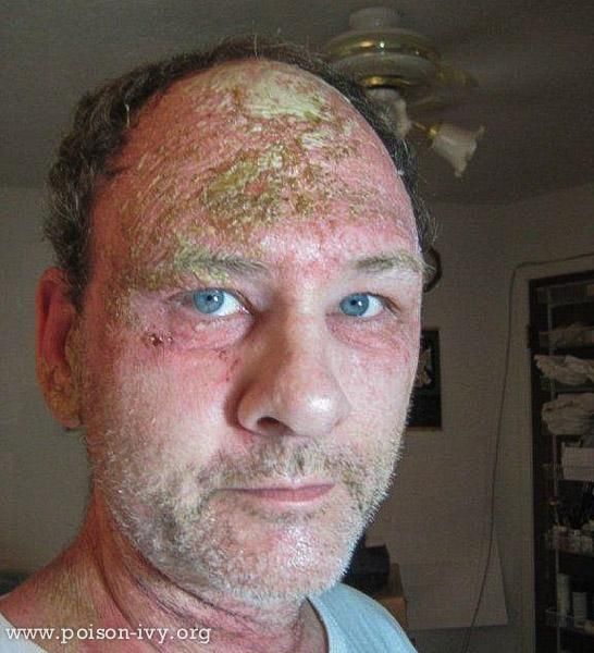 Crusty Forehead Poison Ivy Rash