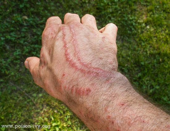 Double Lines of Poison Ivy Rash
