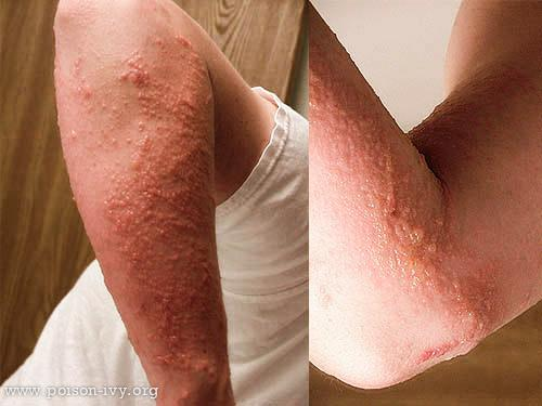 Forearm and Elbow poison ivy Rash