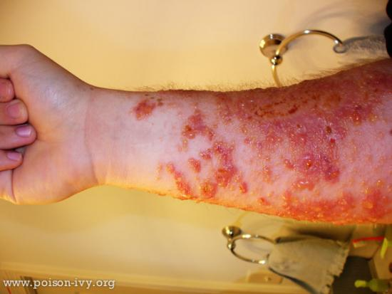 Bad Forearm Poison Ivy Rash