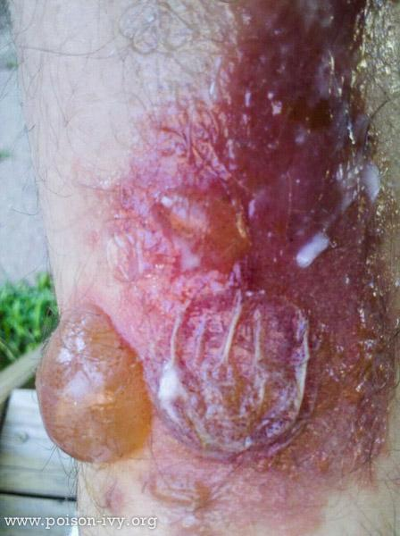 Two Large Rash Bubbles - Full and Empty