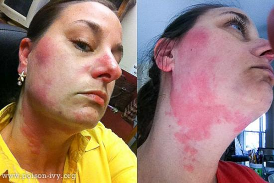 Neck and Cheek Rash from Poison Ivy
