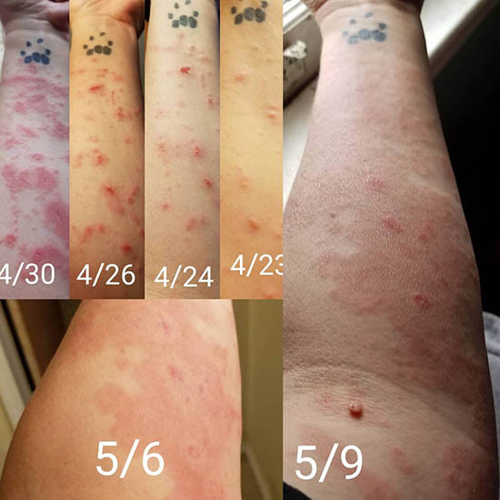 poison ivy rash over time